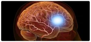 migren-lechenie-v-izraile