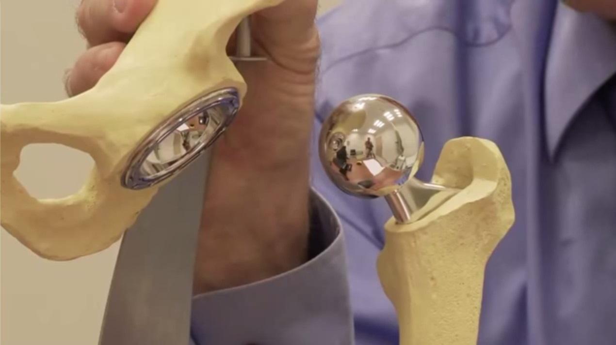 материал для протезирования суставов
