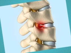 Перелом поясничного позвонка - лечение