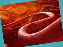 lechenie sosudistoy hirurgii v izraile