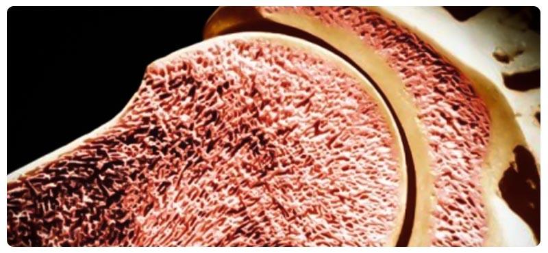 osteoporoz-kak-rezultat-narushenij-kostnogo-metabolizma