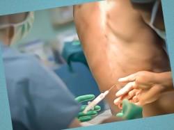 spinnomozgovaya anasteziya