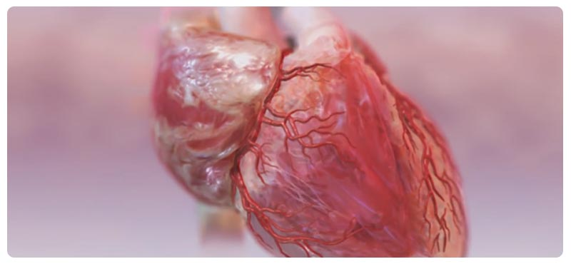 атеросклероз симптомы