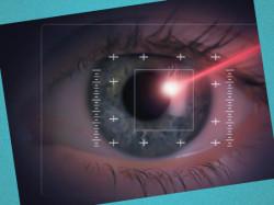 глаукома симптомы и лечение