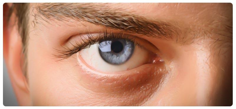 глаукома симптомы