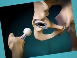 endoprotezirovanie-sustavov