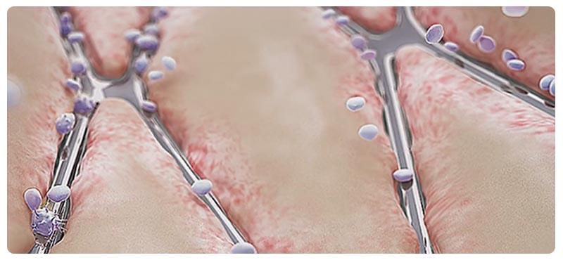 sosudistye-bolezni-nog