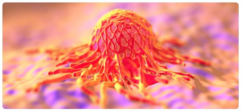 Рак почки: диагностика, лечение