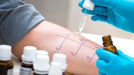 Нарушения функций иммунной системы