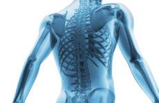Врожденное заболевание костей из-за нарушений костного метаболизма