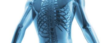 Метаболические заболевания костей