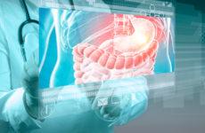 Методы и стандарты лечения в гастроэнтерологии