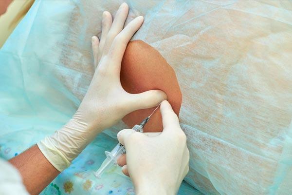 Перидуральная анестезия в родах