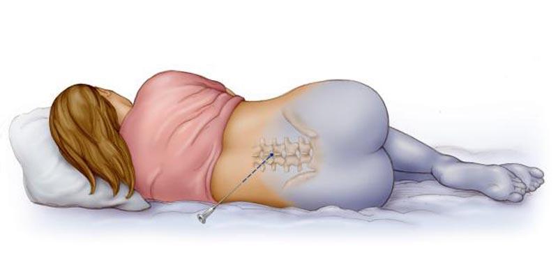 перидуральная анестезия родах