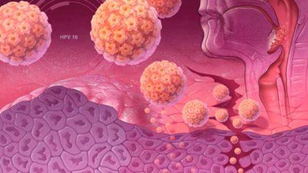 Вирус папилломы на теле человека