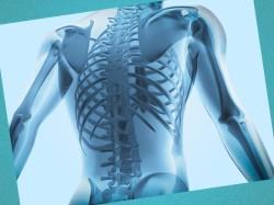 vrojdennoe zabolevanie kostey iz-za narusheniy kostnogo metabolizma