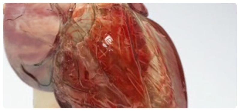 атеросклероз сосудов симптомы