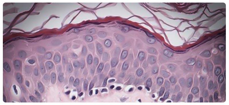 грибовидный микоз кожи