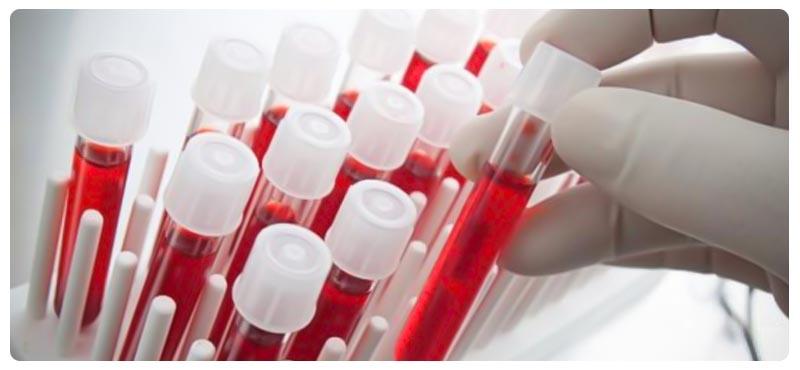 неспецифический реактивный гепатит причины