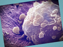 лечение онкологии в израиле цены отзывы