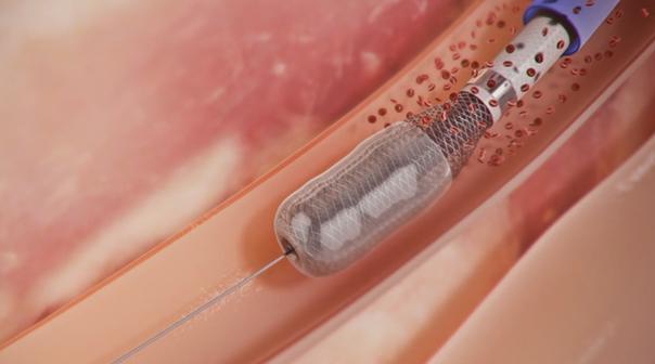 simptomy-tromboflebita