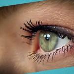 Лечение глаукомы в Израиле