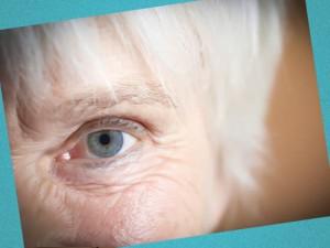 эффективно убрать морщины вокруг глаз
